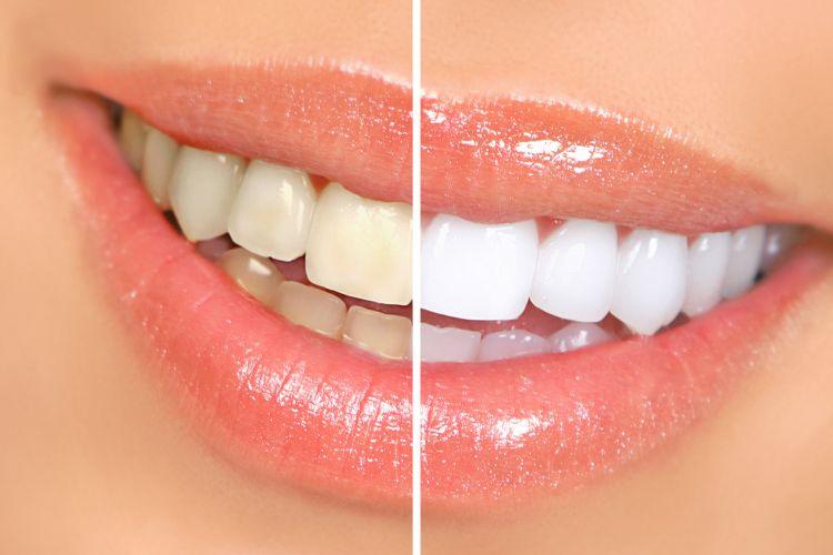 5 Cara Ampuh Memutihkan Gigi Dengan Bahan Alami yang Mudah Kita Temukan