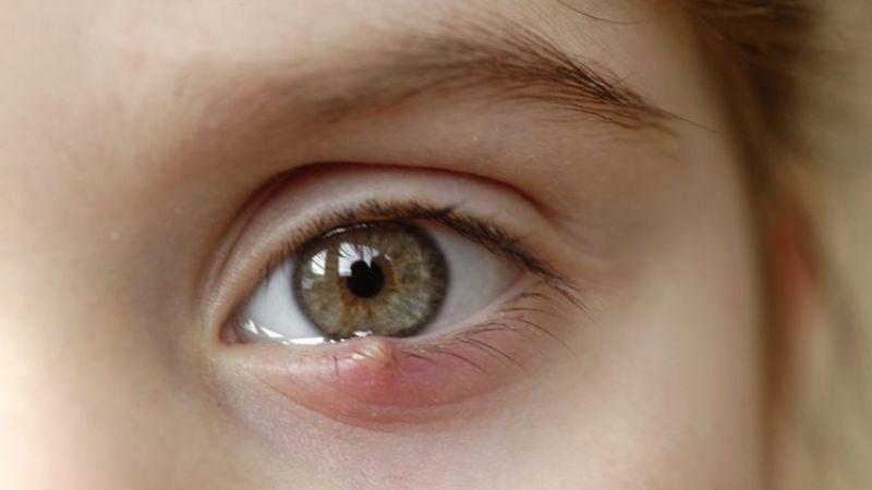 Mata Mengalami Bintitan? Begini Cara Mengobatinya