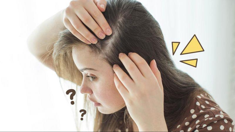 5 Minyak Alami yang Dapat Mengatasi Masalah Rambut