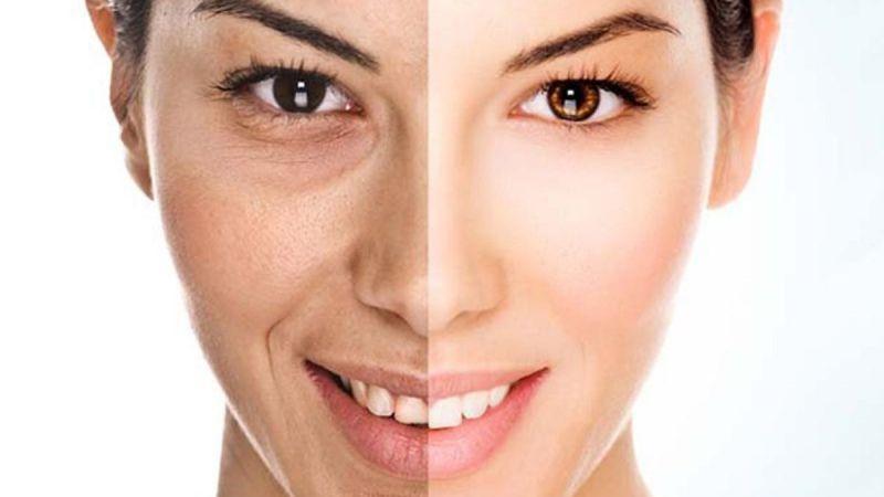 Biar Wajah Tidak Cepat Keriput, Hindari 5 Penyebab Penuaan Dini Ini
