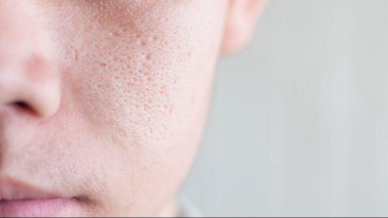 Cara Mengecilkan Pori-pori Wajah Dengan 5 Langkah Sederhana Ini