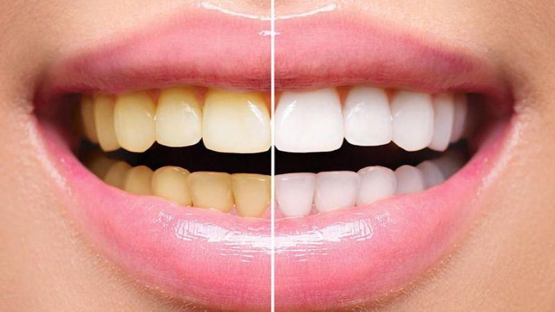 Ini 7 Bahan Alami yang Ampuh Memutihkan Gigi Kuning