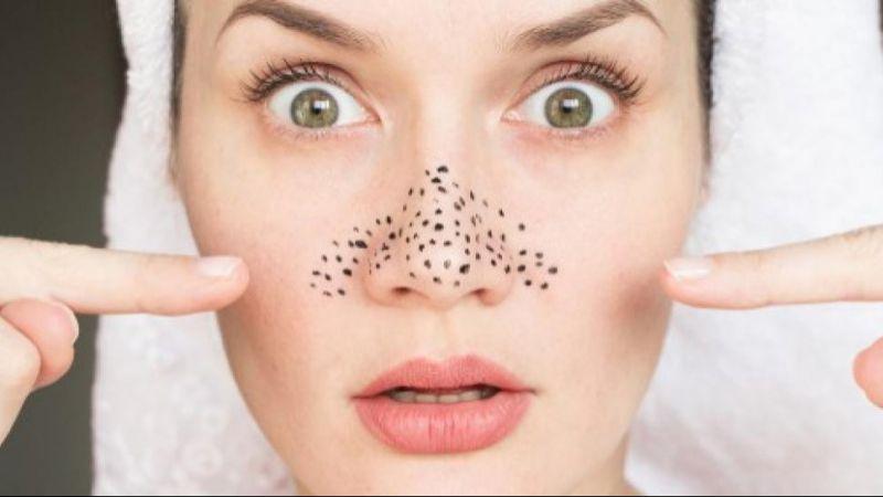 Ini 5 Penyebab Munculnya Komedo di Area Hidung, Salah Satunya Karena Masker