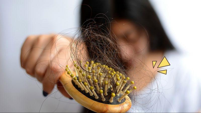 Lakukan 5 Cara Sederhana Ini Untuk Mengatasi Rambut Rontok